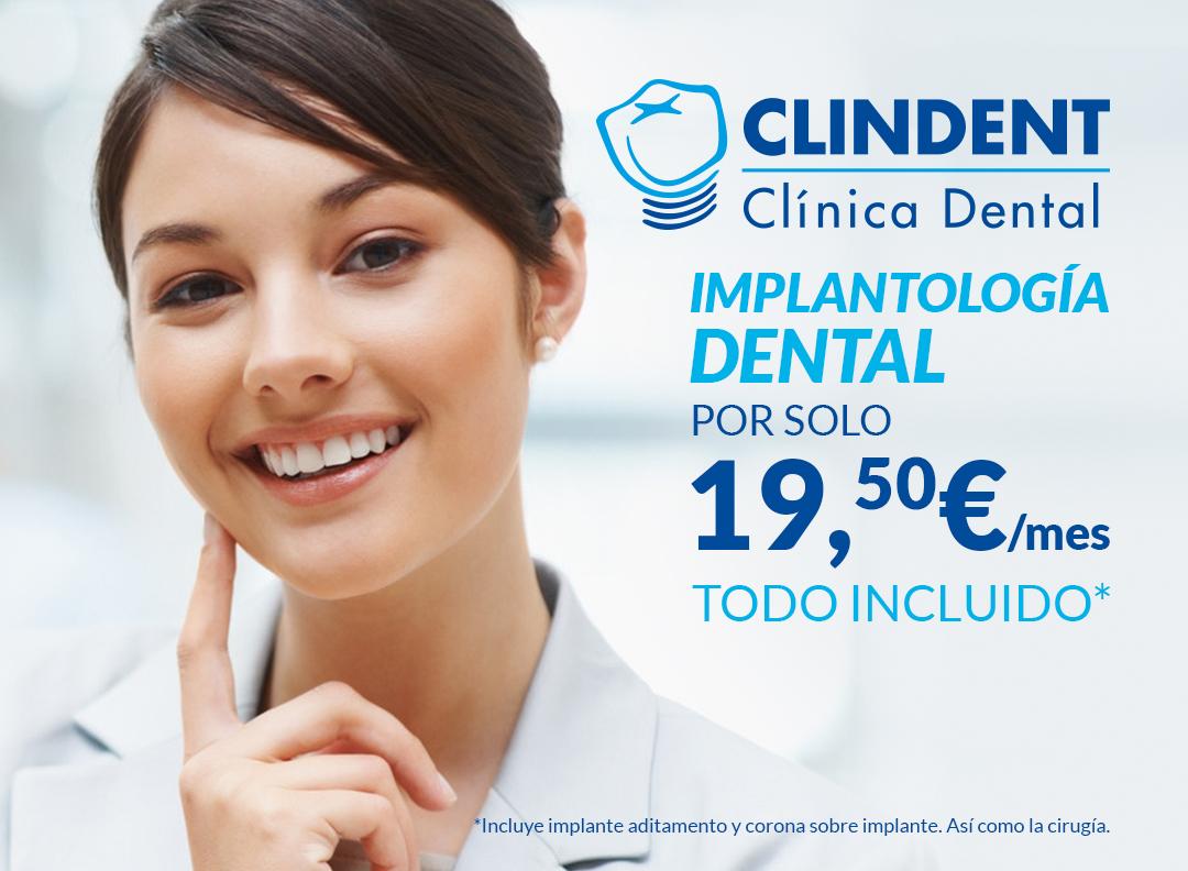 implantes dentales en burjassot y tavernes blanques